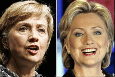 Cosmetic Surgery - Hillary Clinton