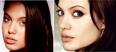 Cosmetic Surgery - Angelina Jolie