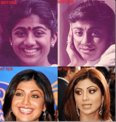 Cosmetic Surgery - SHilpa Shetty
