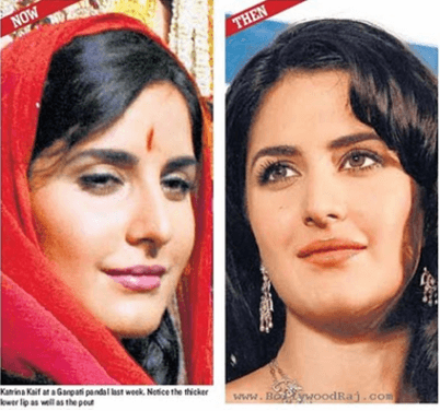 Cosmetic Surgery 6 8 Bollywood Actresses who have Undergone Plastic Surgery