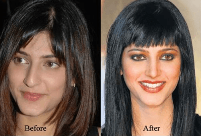 Cosmetic Surgery - Shruti Hassan