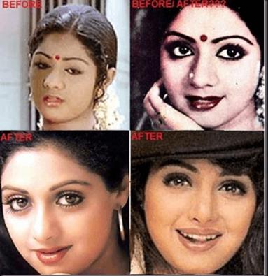 Cosmetic Surgery - Sridevi