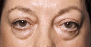 Puffy Eyes 300x156 How to Get Rid of Dark Circles Under the Eyes