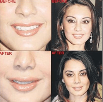 cosmetic surgery 1 Top 10 Bollywood and Hollywood Plastic Surgery Disasters
