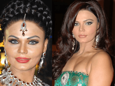 cosmetic surgery 2 Top 10 Bollywood and Hollywood Plastic Surgery Disasters