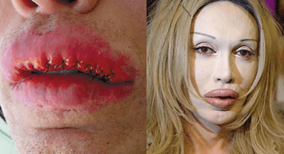cosmetic surgery 3 Top 10 Bollywood and Hollywood Plastic Surgery Disasters