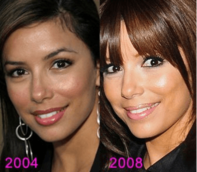cosmetic surgery 9 Top 10 Bollywood and Hollywood Plastic Surgery Disasters