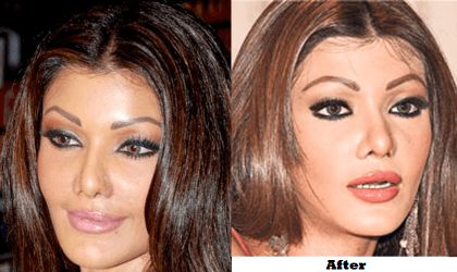 cosmetic surgery Top 10 Bollywood and Hollywood Plastic Surgery Disasters