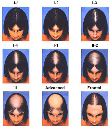baldness in women