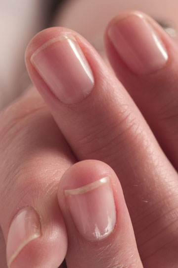 Cuticle+Problems3 16 Ways to Deal with Cuticle Problems