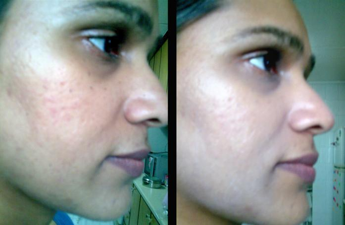 Skin79 BB Cream Review u2013 Indian Makeup and Beauty Blog
