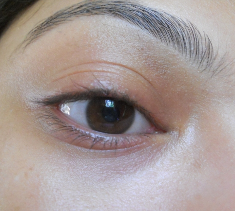 how to get rid of under eye wrinkles quickly