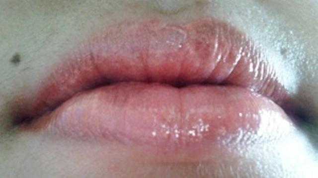 lips (1)