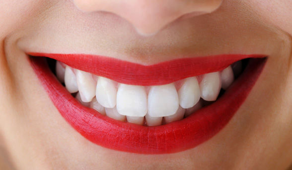 How To Get A Perfect White Smile