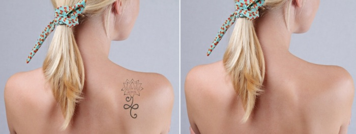 8-effective-ways-to-remove-permanent-tattoo6