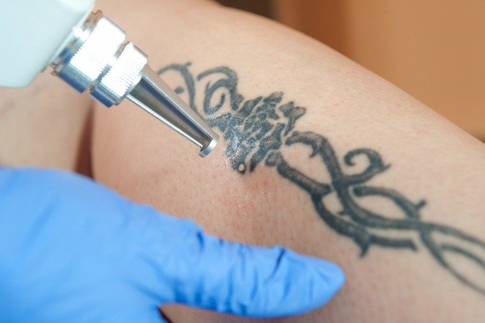 8-effective-ways-to-remove-permanent-tattoo7