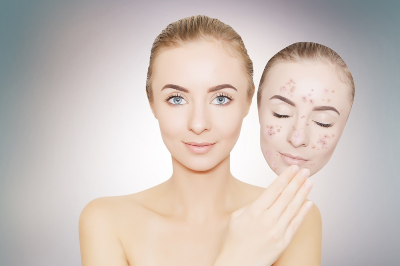 8 Effective Ways To Remove Black Spots On Face
